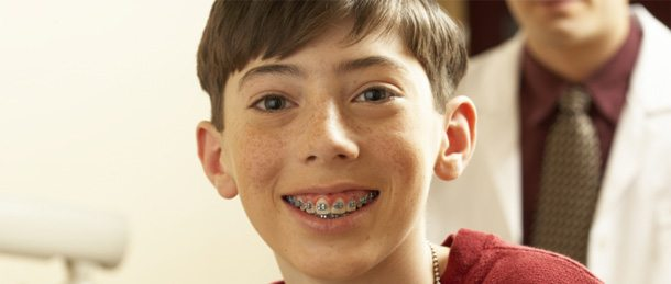 Braces Severns Orthodontics and Dentistry