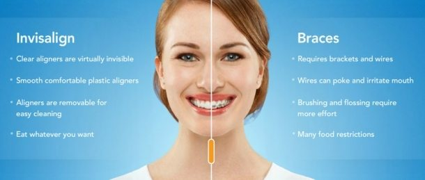 King Orthodontics Invisalign Pittsburgh